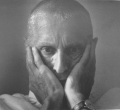 Макс Альперт. Хирург Николай Амосов. 1975