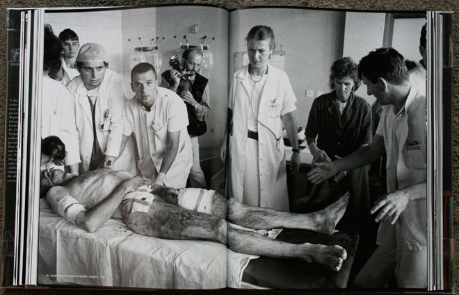 Dr. Sanja Besarovic, Kosevo Hospital, Sarajevo, 1993