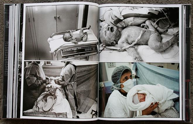 Sarah Cameron Leibovitz,<br /> (photographed dy Alison Estabrook, Susan Sontag, and Susan Steiman),<br /> Roosevelt Hospital, New York, Oktober 16, 2001