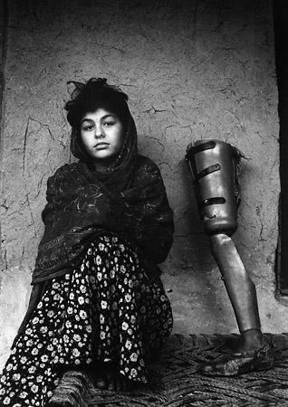 <p>Хэрриет Логан<br /> Хума (14&nbsp;лет) потеряла ногу в&nbsp;возрасте шести лет во&nbsp;время обстрела моджахедов.<br /> Два ребенка, которые играли вместе с&nbsp;ней, погибли.<br /> Women in&nbsp;Afghanistan</p>