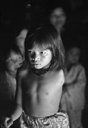 <p>Филипп Джонс Гриффитс<br /> Южный Вьетнам. Куинь Лан, 11лет, усебя дома. Наееотца неоднократно распрыскивали Agent Orange.<br /> © Philip Jones Griffiths/Magnum Photos<br /> Agent Orange</p>