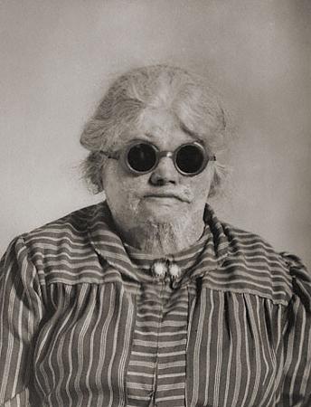 Август Зандер<br>Жертва взрыва<br>Желатиновая галогено-серебрянная печать,  около 1930