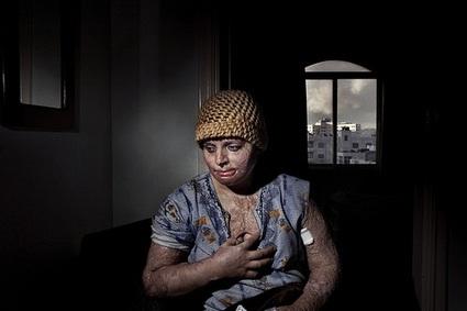 Sahla. Severely injured Iraqis live and get treated inthe Kaser Jaddah hotel inAmman aspart ofanMSF run operation. Jordan 2008 © Paolo Pellegrin/Magnum Photos
