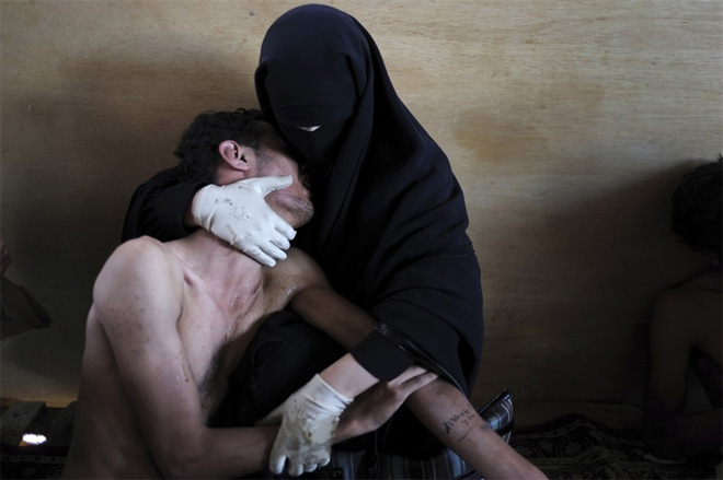 © Сэмюэл Аранда / Нью-Йорк Таймс<br /> Главный приз. Фатима аль-Кавс обнимает своего раненого сына Заида. Снимок сделан в Йемене, 15 октября 2011 года.