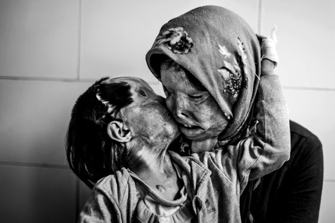 VICTIMS OF FORCED LOVE. © Ebrahim Noroozi<br>